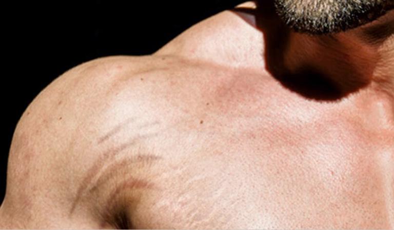 Rạn da khi tập gym và cách khắc phục